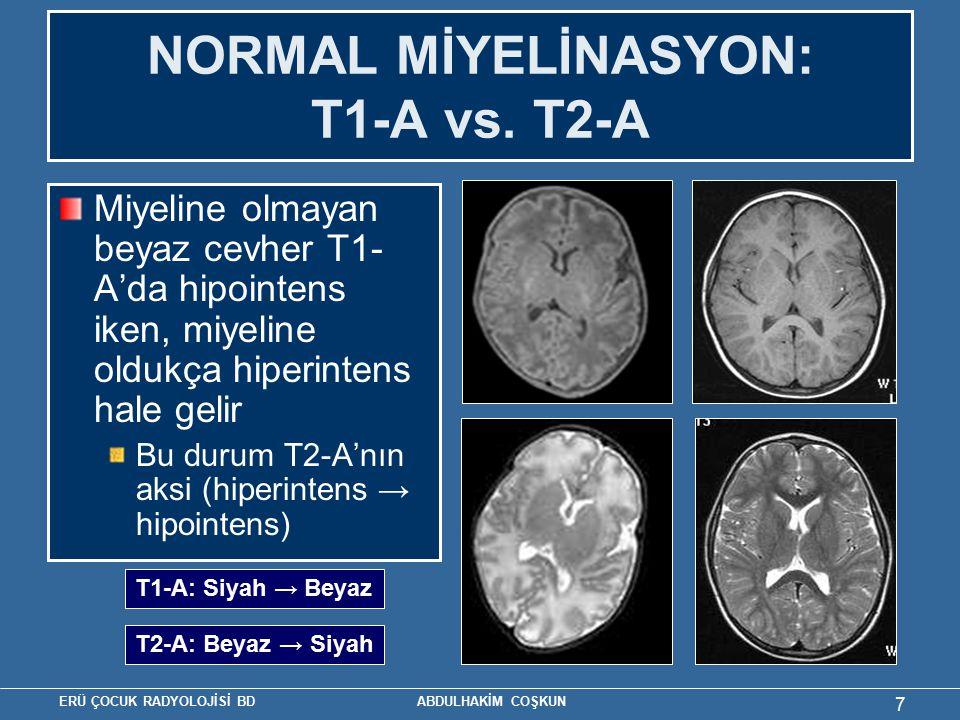 ERÜ ÇOCUK RADYOLOJİSİ BD ABDULHAKİM COŞKUN 7 NORMAL MİYELİNASYON: T1-A vs. T2-A Miyeline olmayan beyaz cevher T1- A'da hipointens iken, miyeline olduk