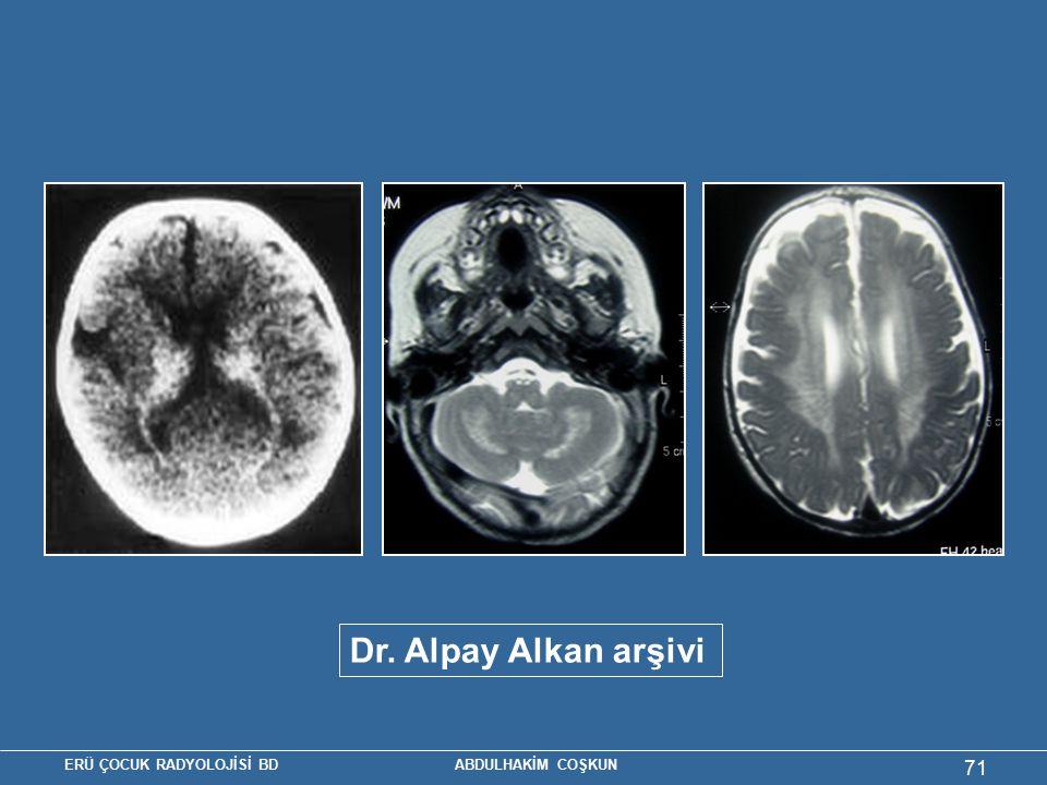 ERÜ ÇOCUK RADYOLOJİSİ BD ABDULHAKİM COŞKUN 71 Dr. Alpay Alkan arşivi