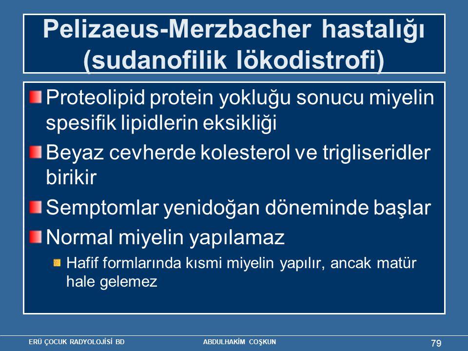 ERÜ ÇOCUK RADYOLOJİSİ BD ABDULHAKİM COŞKUN Pelizaeus-Merzbacher hastalığı (sudanofilik lökodistrofi) Proteolipid protein yokluğu sonucu miyelin spesif