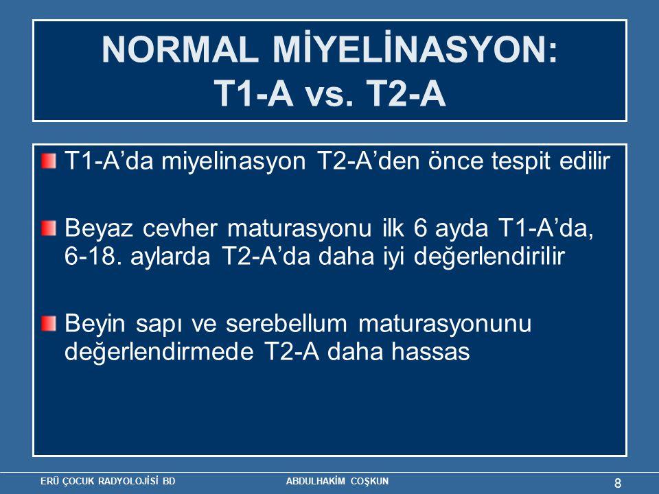 ERÜ ÇOCUK RADYOLOJİSİ BD ABDULHAKİM COŞKUN 8 NORMAL MİYELİNASYON: T1-A vs. T2-A T1-A'da miyelinasyon T2-A'den önce tespit edilir Beyaz cevher maturasy