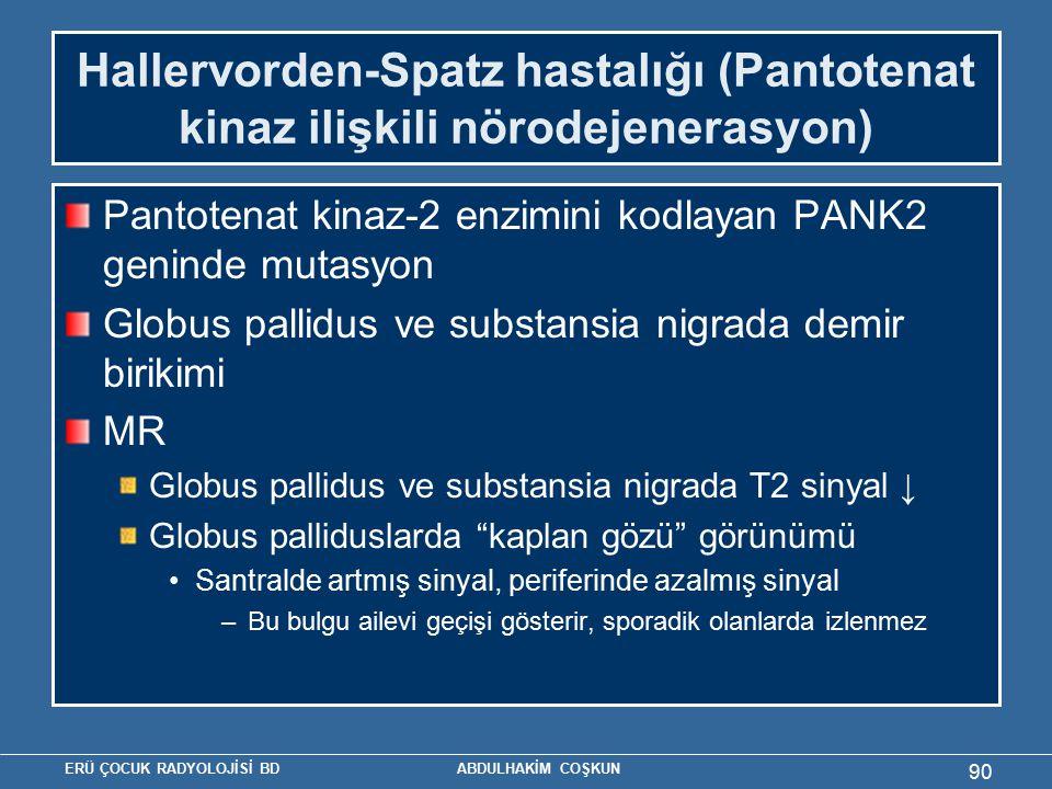 ERÜ ÇOCUK RADYOLOJİSİ BD ABDULHAKİM COŞKUN Hallervorden-Spatz hastalığı (Pantotenat kinaz ilişkili nörodejenerasyon) Pantotenat kinaz-2 enzimini kodlayan PANK2 geninde mutasyon Globus pallidus ve substansia nigrada demir birikimi MR Globus pallidus ve substansia nigrada T2 sinyal ↓ Globus palliduslarda kaplan gözü görünümü Santralde artmış sinyal, periferinde azalmış sinyal –Bu bulgu ailevi geçişi gösterir, sporadik olanlarda izlenmez 90