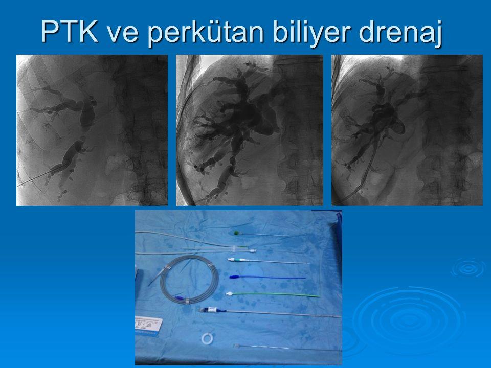 Perkütan Kolesistostomi  SK içine kateter yerleştirilmesi  Cerrahi riskli, Akut Kolesistit  Görüntüleme kılavuzluğunda US + Fluoroskopi eşliğinde US + Fluoroskopi eşliğinde Tek başına US Tek başına US