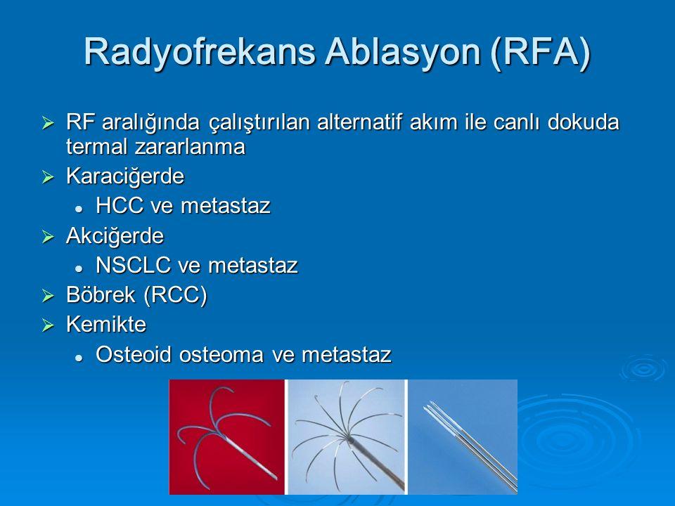 Osteoid osteoma RFA