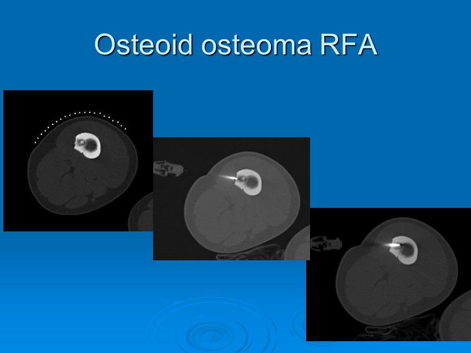 Vasküler İşlemler - Diagnostik anjiografi - PTA ve Stent - Endogreft - Embolizasyon ve Kemoembolizasyon - Radyoembolizasyon - Tromboliz, Trombektomi ve Aterektomi - Vena Cava Filtresi - Venöz örnekleme - EVLT