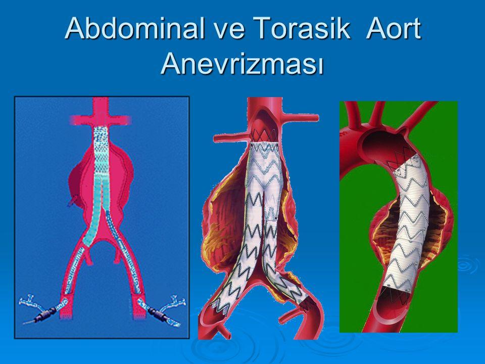 Abdominal ve Torasik Aort Anevrizması