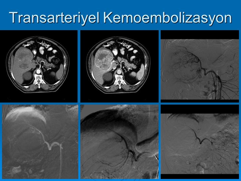 Transarteriyel Kemoembolizasyon