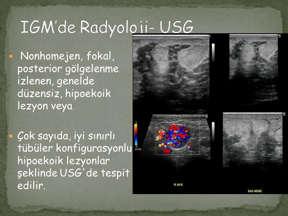 MG bulguları tamamen normal olabileceği gibi, farklı boyutlarda kitle, fokal asimetrik dansite artışı, yapısal distorsiyon gibi malignite yönünden şüpheli lezyonlar da tespit edilebilir
