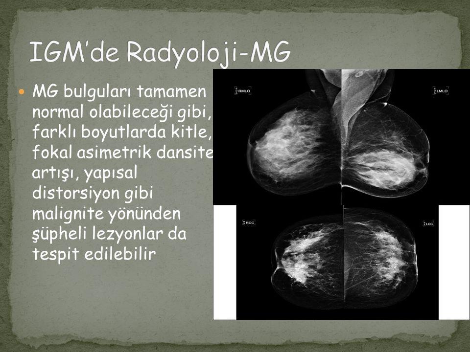 MR incelemede, çevresel kontrastlanma gösteren bir veya birkaç lezyondan, sınırları iyi seçilemeyen heterojen hipertens lezyonlara kadar değişen görünümler tespit edilmiştir