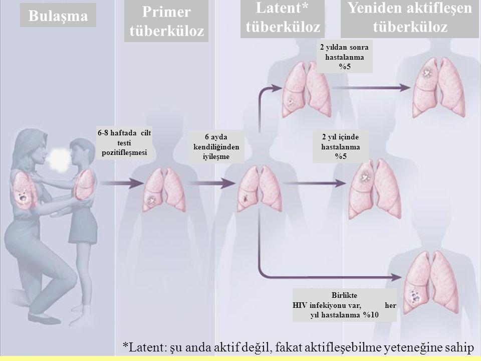 Bulaşma Latent* tüberküloz Primer tüberküloz Yeniden aktifleşen tüberküloz 6-8 haftada cilt testi pozitifleşmesi 6 ayda kendiliğinden iyileşme 2 yıl içinde hastalanma %5 2 yıldan sonra hastalanma %5 Birlikte HIV infekiyonu var, her yıl hastalanma %10 *Latent: şu anda aktif değil, fakat aktifleşebilme yeteneğine sahip