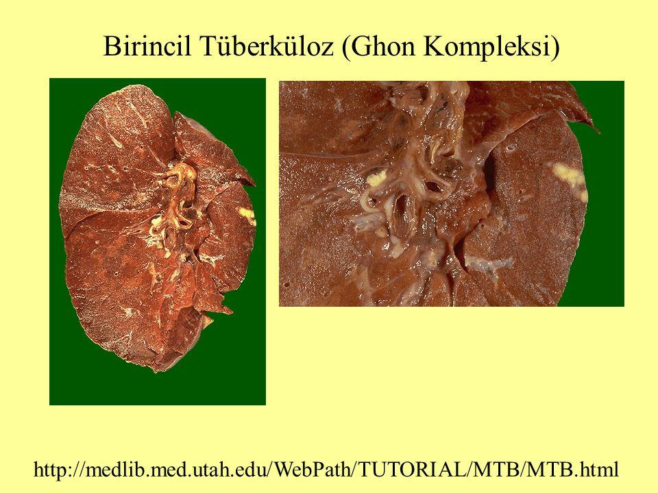 Birincil Tüberküloz (Ghon Kompleksi) http://medlib.med.utah.edu/WebPath/TUTORIAL/MTB/MTB.html