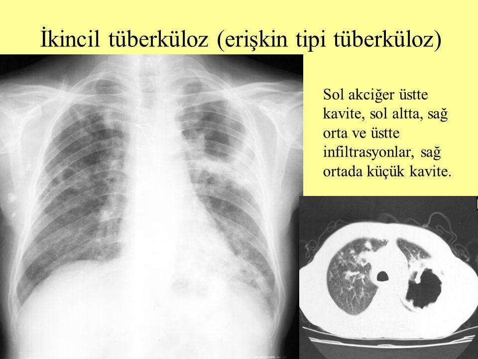 İkincil tüberküloz (erişkin tipi tüberküloz) Sol akciğer üstte kavite, sol altta, sağ orta ve üstte infiltrasyonlar, sağ ortada küçük kavite.