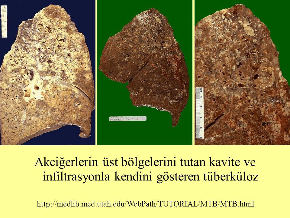 Akciğerlerin üst bölgelerini tutan kavite ve infiltrasyonla kendini gösteren tüberküloz http://medlib.med.utah.edu/WebPath/TUTORIAL/MTB/MTB.html