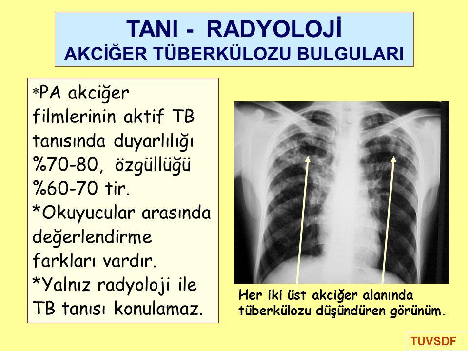 Her iki üst akciğer alanında tüberkülozu düşündüren görünüm.