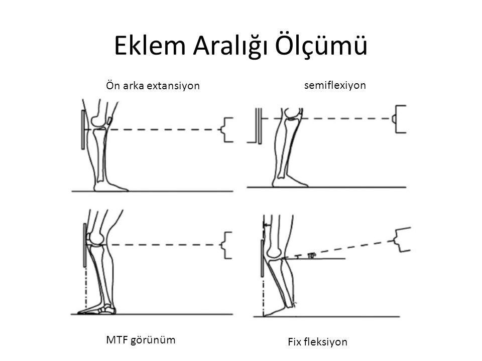 Eklem Aralığı Ölçümü Ön arka extansiyon semiflexiyon MTF görünüm Fix fleksiyon