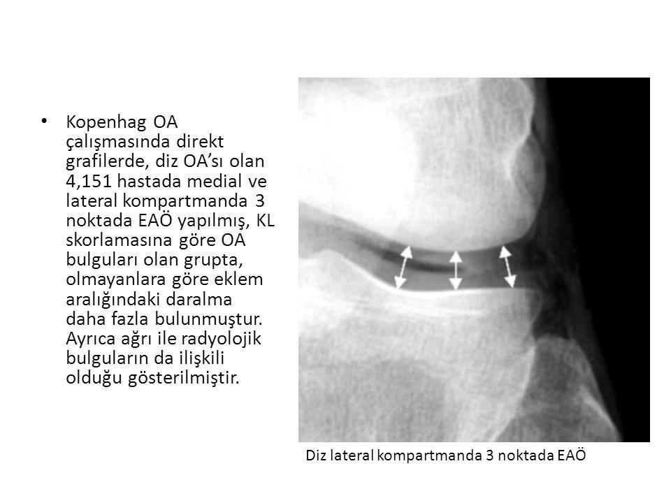 Kopenhag OA çalışmasında direkt grafilerde, diz OA'sı olan 4,151 hastada medial ve lateral kompartmanda 3 noktada EAÖ yapılmış, KL skorlamasına göre O