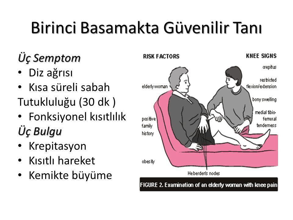 Birinci Basamakta Güvenilir Tanı Üç Semptom Diz ağrısı Kısa süreli sabah Tutukluluğu (30 dk ) Fonksiyonel kısıtlılık Üç Bulgu Krepitasyon Kısıtlı hare