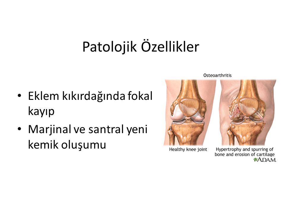 Patolojik Özellikler Eklem kıkırdağında fokal kayıp Marjinal ve santral yeni kemik oluşumu