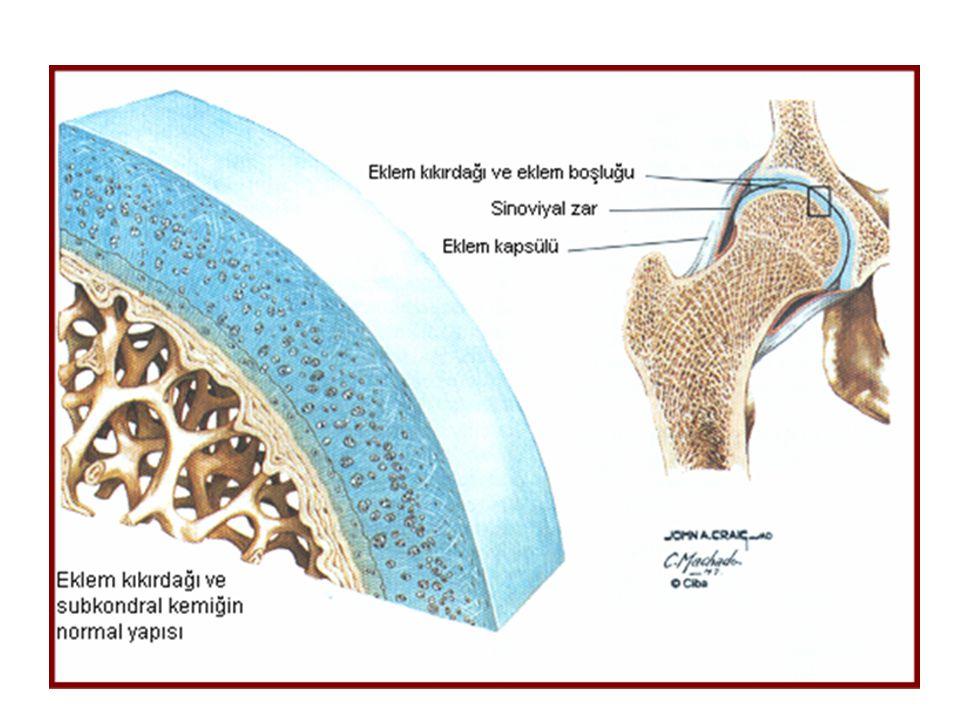 Kısa dönem ağır semptomların kontrolu Oral Parastemol Oral NSAİD/COX 2 inh (Edolar fort, Celebrex 100-200 mg kapsül) İntraartiküler kortikosteroid Uzun dönem Parastemol Opioid Viskosuplementasyon intra artiküler hyaluronik asit enjeksiyonu(maliyeti yüksek, haftada bir tekrarlanmalı, yapıyı modifiye edici etkiye yönelik veri yetersiz, 2-5 haftada etki başlar)
