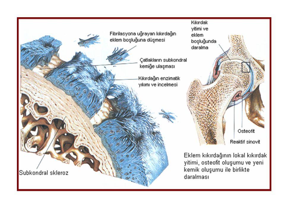 ACR KRİTERLERİ Dizde ağrı ve aşağıdakilerden 3 ü <30 dk sabah tutukluğu >50 yaş Aktif hareketle krepitasyon Kemikte hassasiyet Kemikte büyüme Palpasyonla ısı artışı olmaması American College of Rheumatology