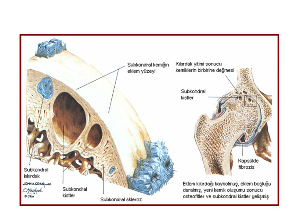 Kellgren-Lawrence EvreRadyolojik bulgular 0Normal 1 Şüpheli Eklem aralığında şüpheli daralma ve olası osteofit oluşumu 2 Hafif Kesin osteofit ve eklem aralığında olası daralma 3 Orta Orta derecede çok sayıda osteofit, eklem aralığında kesin daralma, bir miktar skleroz ve kemik uçlarında olası deformite 4 Şiddetli Büyük osteofitler, eklem aralığında belirgin daralma, belirgin skleroz ve kemik uçlarında kesin deformite