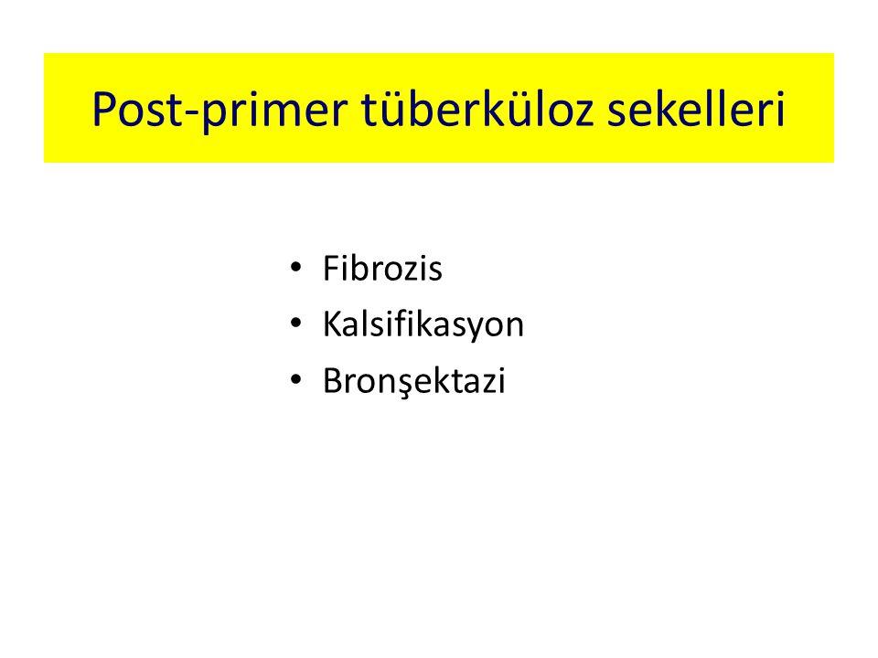 Post-primer tüberküloz sekelleri Fibrozis Kalsifikasyon Bronşektazi