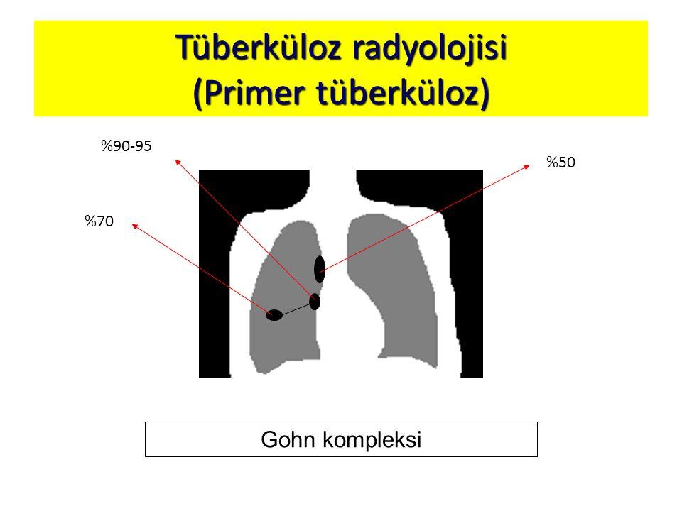 Tüberküloz radyolojisi (Primer tüberküloz) Gohn kompleksi %70 %90-95 %50