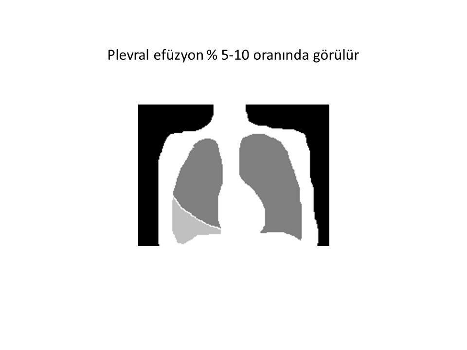 Plevral efüzyon % 5-10 oranında görülür