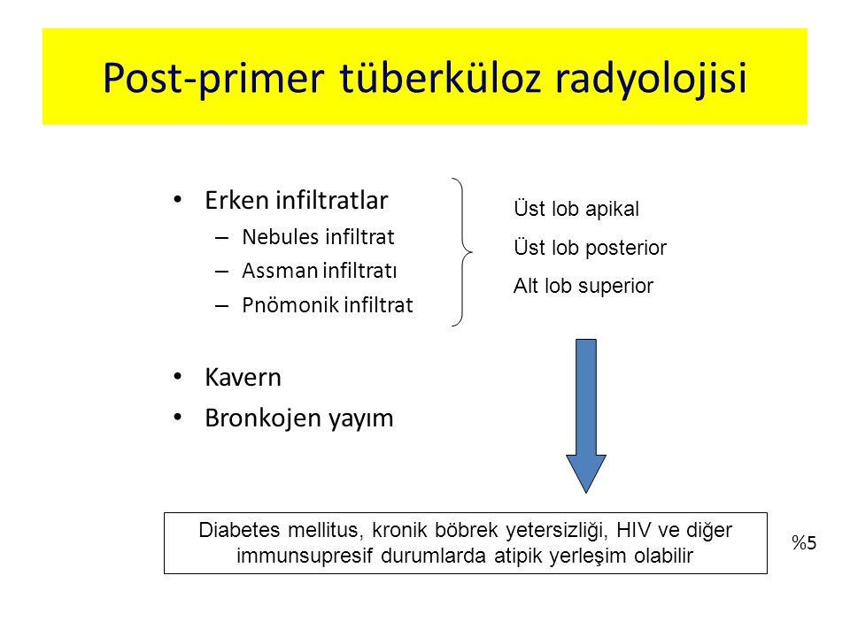 Erken infiltratlar – Nebules infiltrat – Assman infiltratı – Pnömonik infiltrat Kavern Bronkojen yayım Post-primer tüberküloz radyolojisi Üst lob apik
