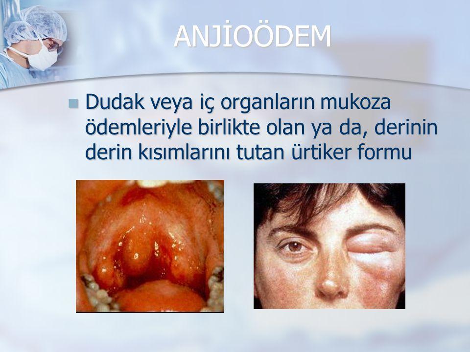 ANJİOÖDEM Dudak veya iç organların mukoza ödemleriyle birlikte olan ya da, derinin derin kısımlarını tutan ürtiker formu Dudak veya iç organların muko