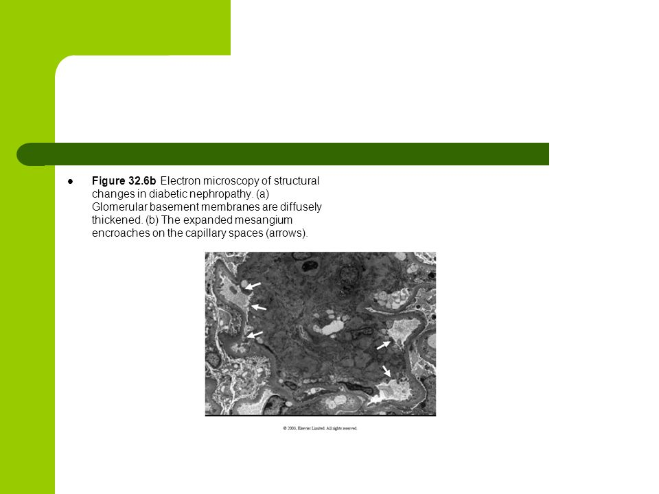 Figure 32.6b Electron microscopy of structural changes in diabetic nephropathy.