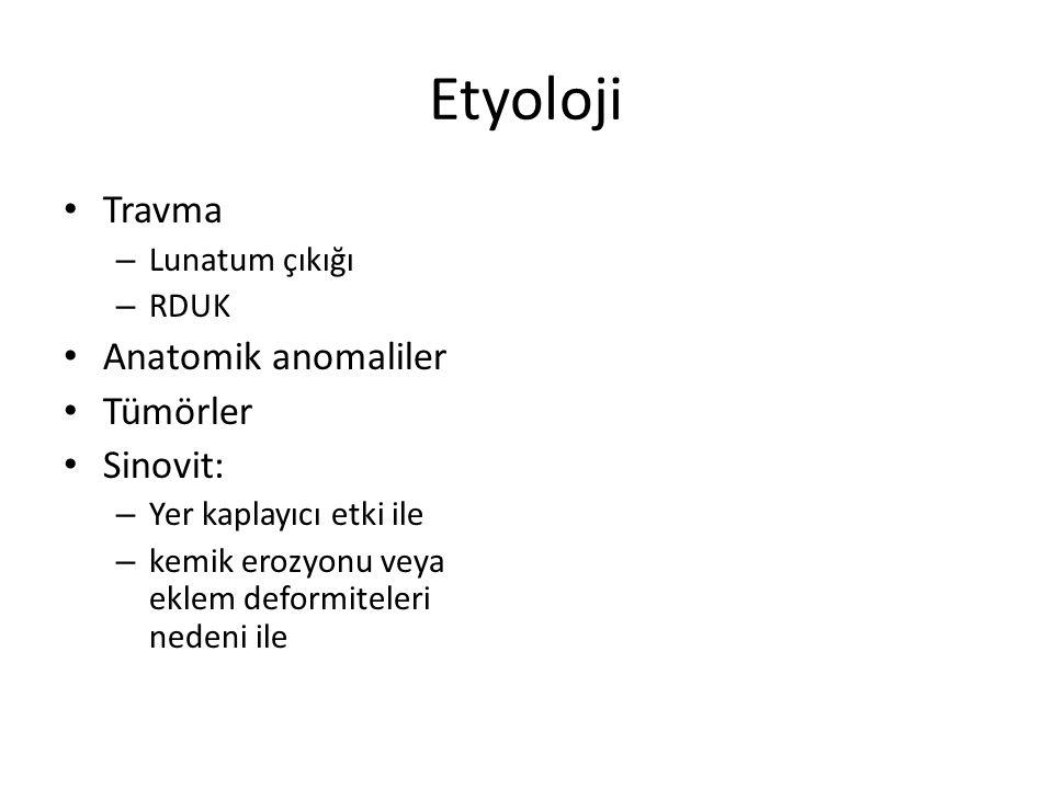 Etyoloji Travma – Lunatum çıkığı – RDUK Anatomik anomaliler Tümörler Sinovit: – Yer kaplayıcı etki ile – kemik erozyonu veya eklem deformiteleri nedeni ile