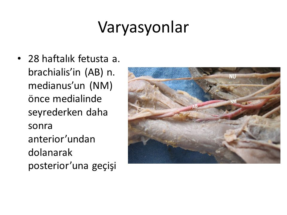 Varyasyonlar 28 haftalık fetusta a. brachialis'in (AB) n. medianus'un (NM) önce medialinde seyrederken daha sonra anterior'undan dolanarak posterior'u