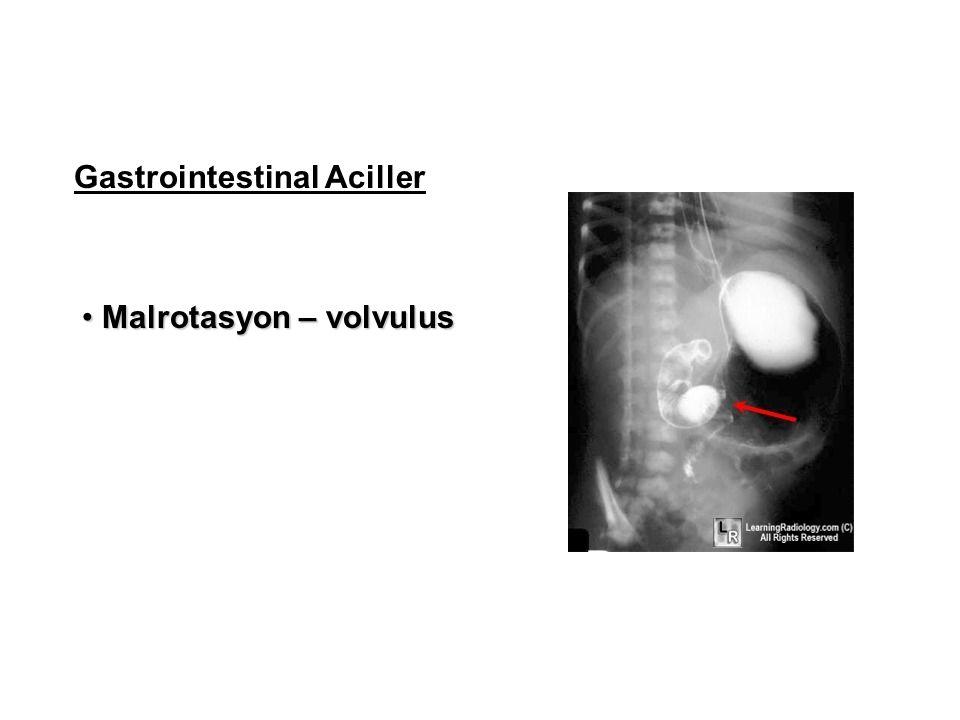 Gastrointestinal Aciller Malrotasyon – volvulus Malrotasyon – volvulus