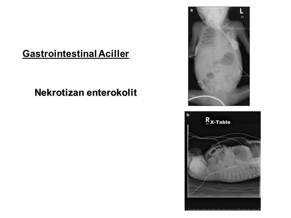 Gastrointestinal Aciller Nekrotizan enterokolit