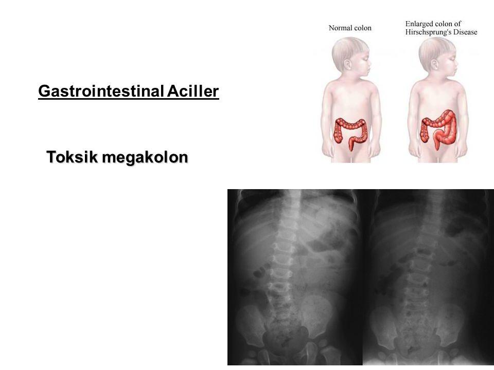 Gastrointestinal Aciller Toksik megakolon