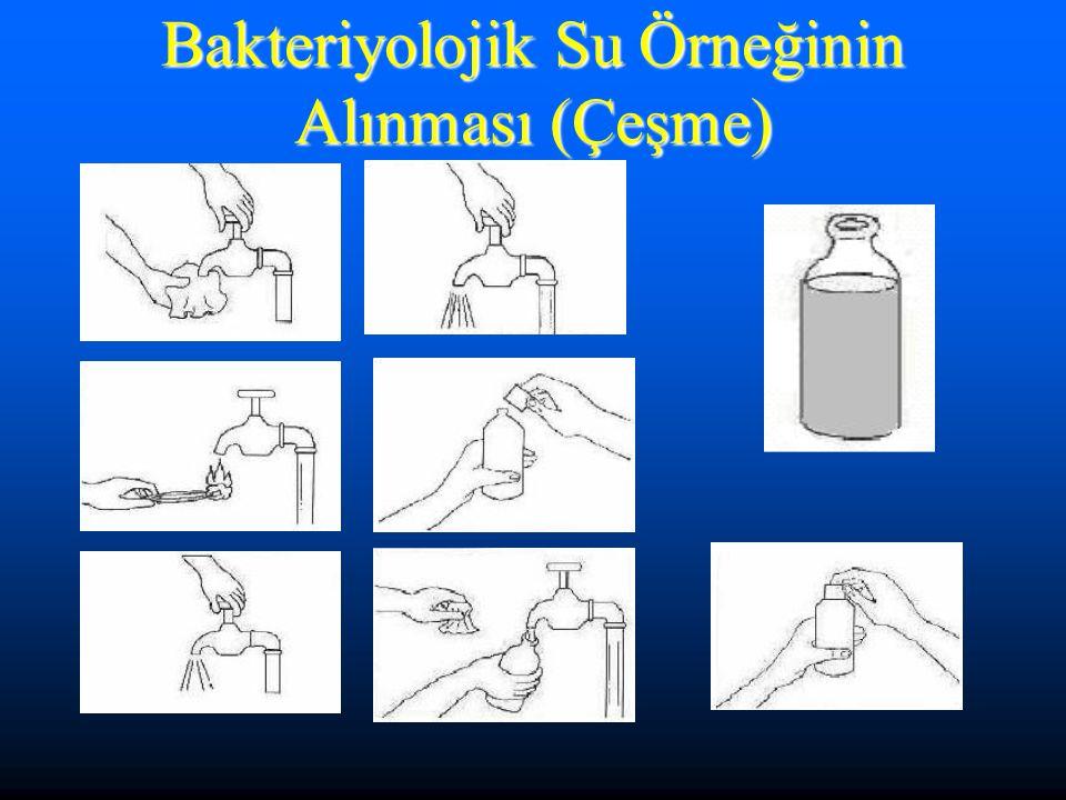 Bakteriyolojik Su Örneğinin Alınması (Çeşme)