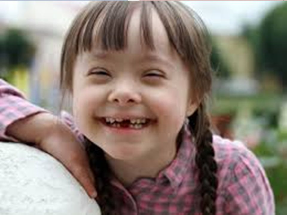 Engellilik, değiştirilemeyen ve süreklilik gösteren bir durumdur.