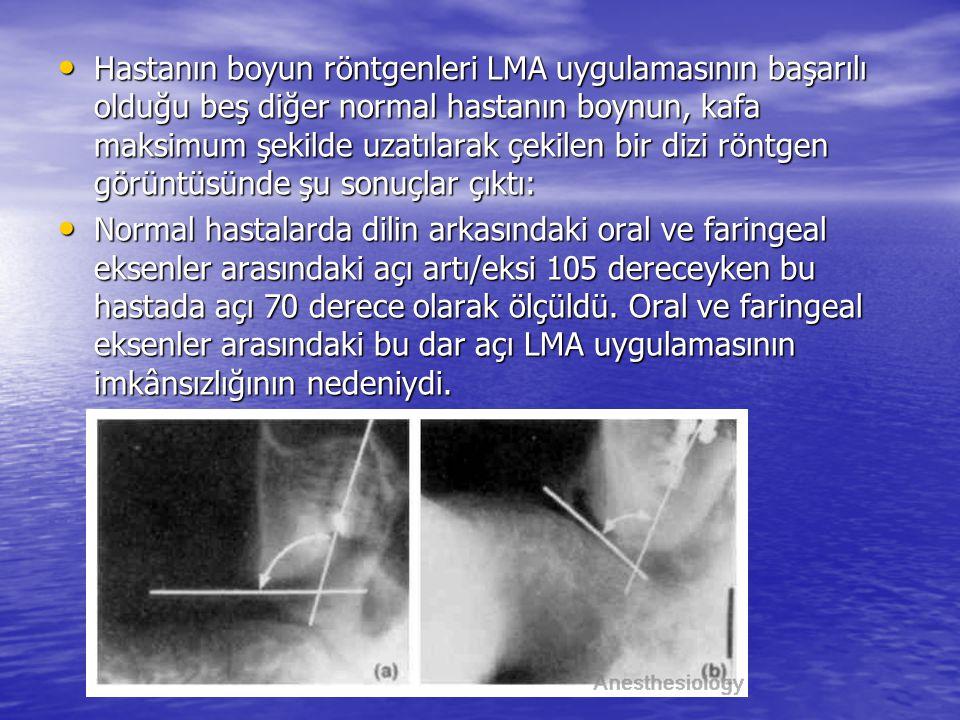 Hastanın boyun röntgenleri LMA uygulamasının başarılı olduğu beş diğer normal hastanın boynun, kafa maksimum şekilde uzatılarak çekilen bir dizi röntg