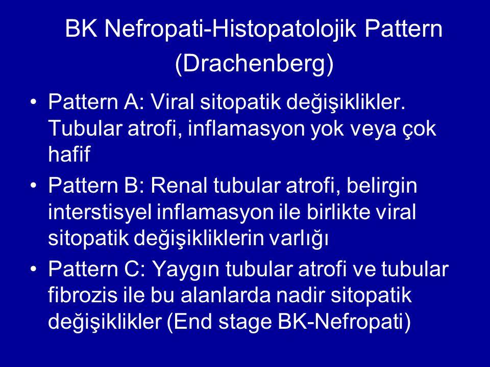 BK Nefropati-Histopatolojik Pattern (Drachenberg) Pattern A: Viral sitopatik değişiklikler. Tubular atrofi, inflamasyon yok veya çok hafif Pattern B: