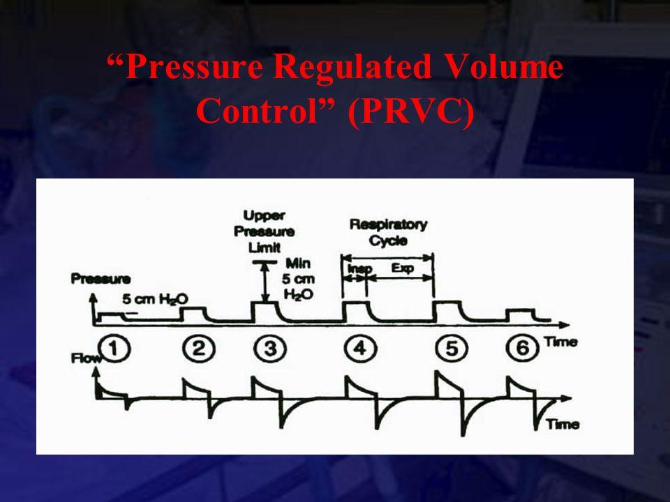 """Pressure Regulated Volume Control"" (PRVC)"