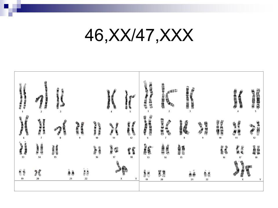 46,XX/47,XXX