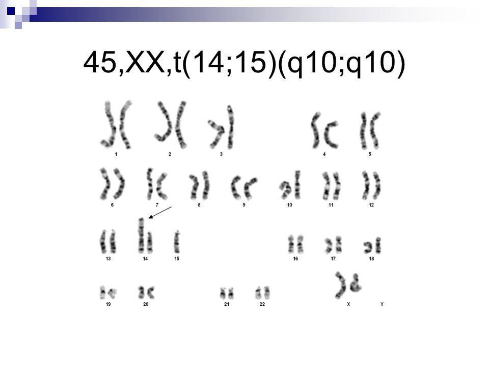 45,XX,t(14;15)(q10;q10)