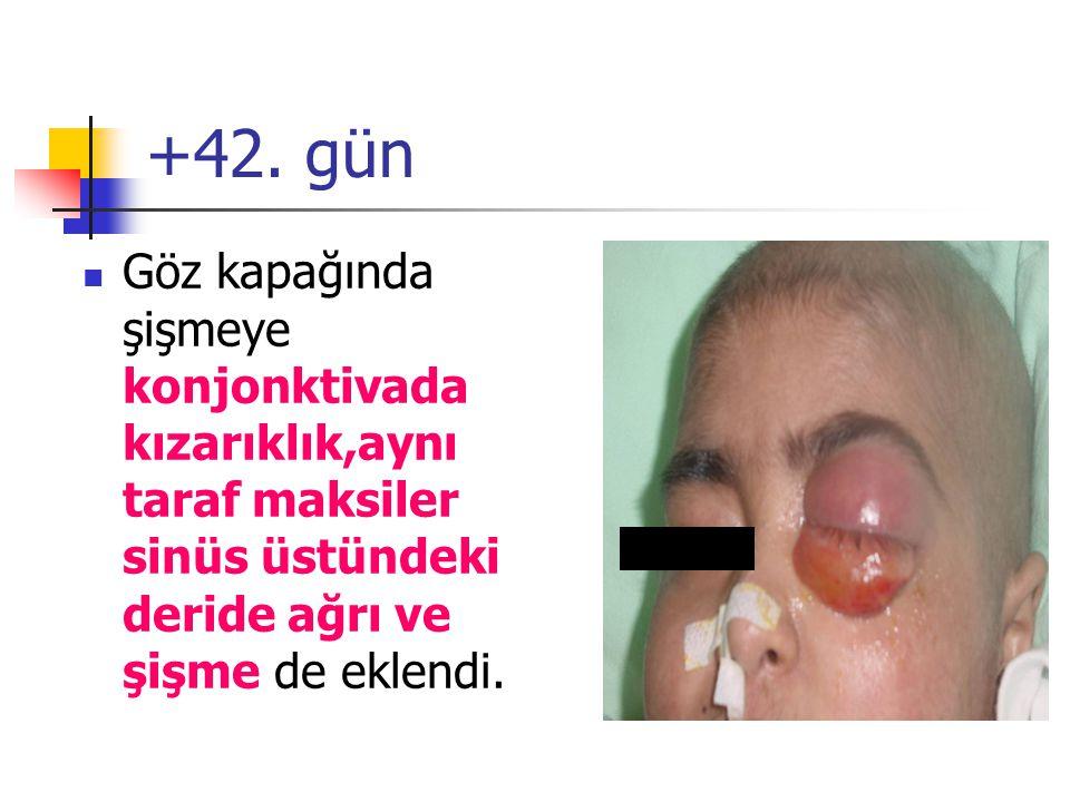 +42. gün Göz kapağında şişmeye konjonktivada kızarıklık,aynı taraf maksiler sinüs üstündeki deride ağrı ve şişme de eklendi.