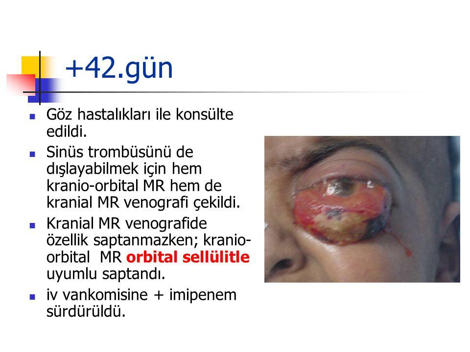 +42.gün Göz hastalıkları ile konsülte edildi.