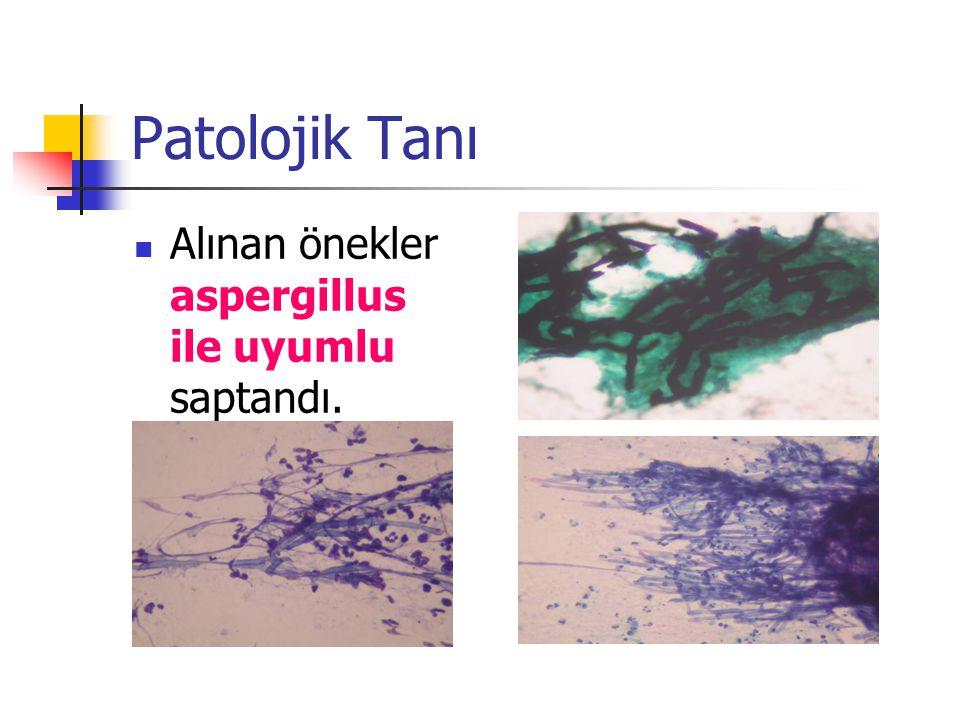 Patolojik Tanı Alınan önekler aspergillus ile uyumlu saptandı.