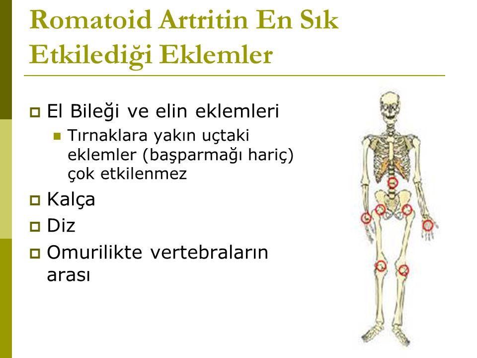 Romatoid Artritin En Sık Etkilediği Eklemler  El Bileği ve elin eklemleri Tırnaklara yakın uçtaki eklemler (başparmağı hariç) çok etkilenmez  Kalça  Diz  Omurilikte vertebraların arası