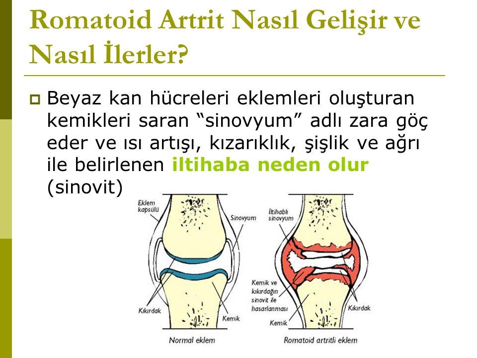 Romatoid Artrit Nasıl Gelişir ve Nasıl İlerler.