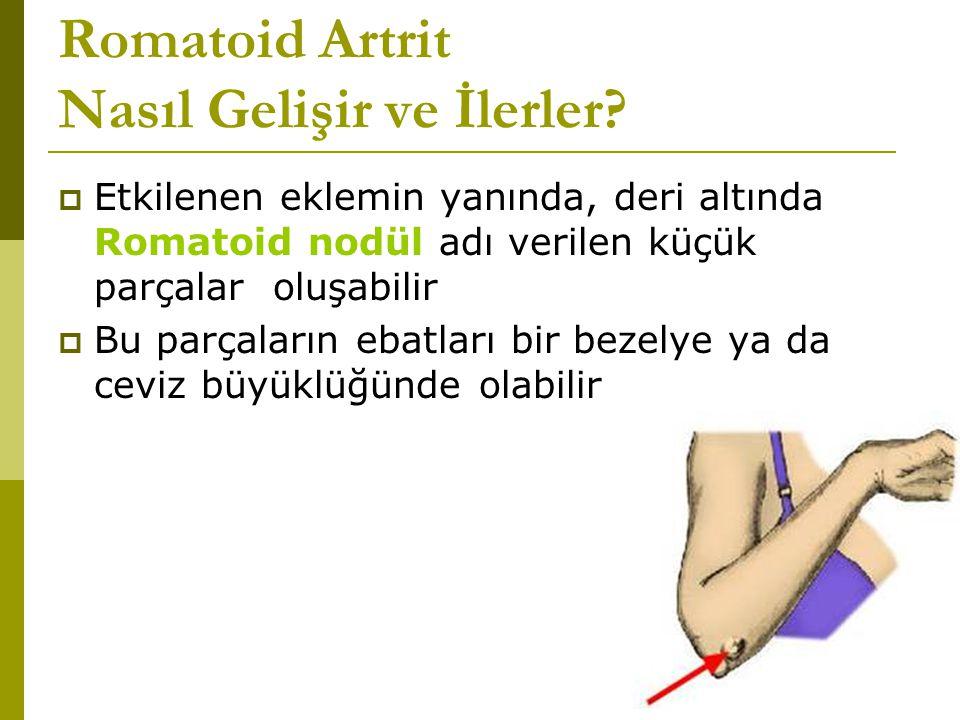 Romatoid Artrit Nasıl Gelişir ve İlerler.