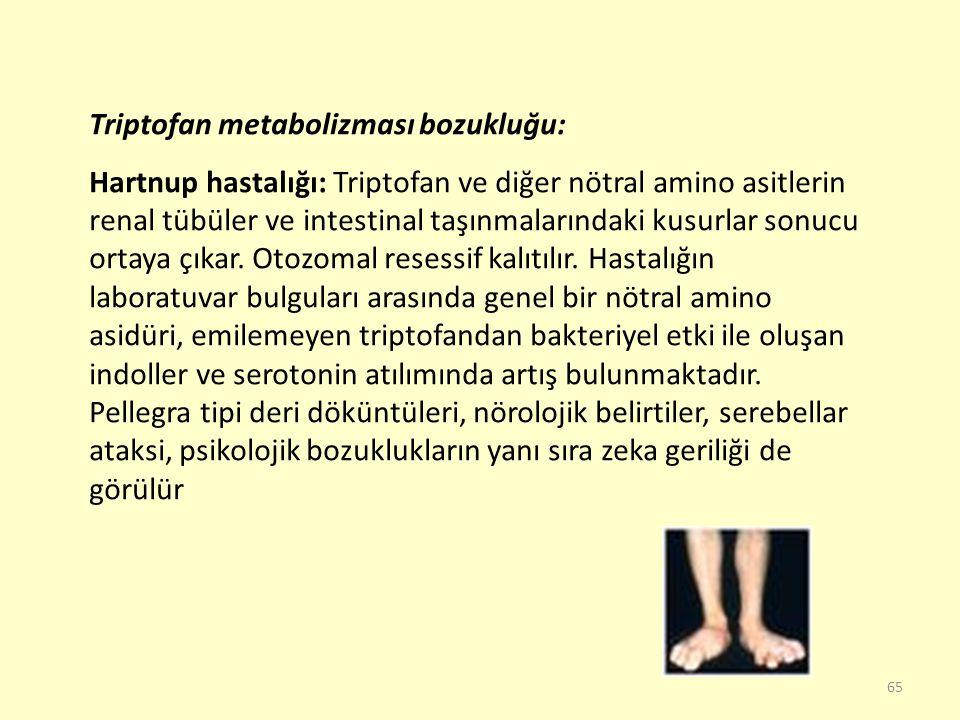 65 Triptofan metabolizması bozukluğu: Hartnup hastalığı: Triptofan ve diğer nötral amino asitlerin renal tübüler ve intestinal taşınmalarındaki kusurl