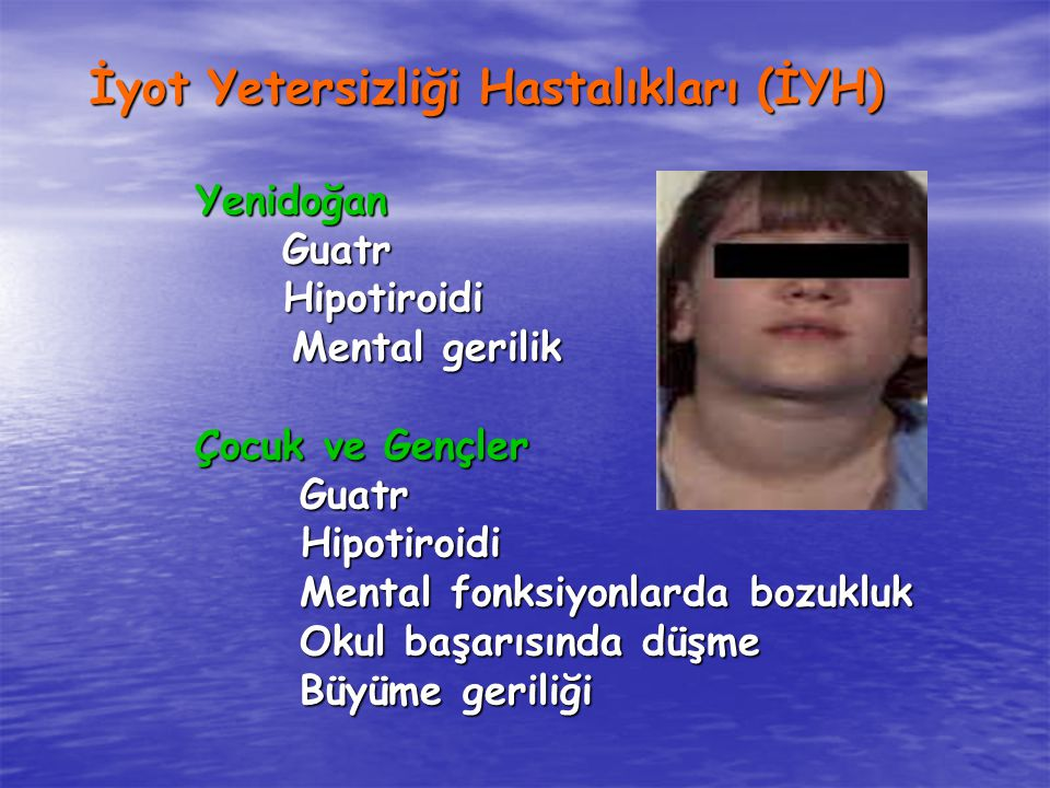 İyot Yetersizliği Hastalıkları (İYH) Yenidoğan Yenidoğan Guatr Guatr Hipotiroidi Hipotiroidi Mental gerilik Mental gerilik Çocuk ve Gençler Guatr Hipotiroidi Hipotiroidi Mental fonksiyonlarda bozukluk Okul başarısında düşme Büyüme geriliği